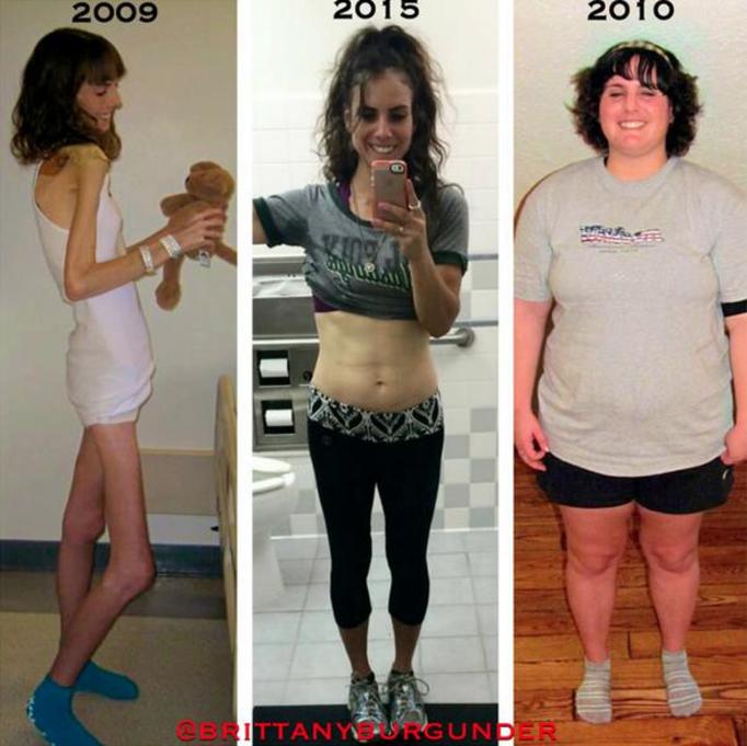 Набор веса после анорексии