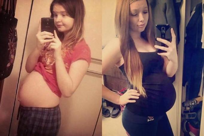 ciąża w młodym wieku