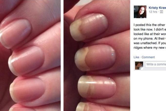 lakier niszczy paznokcie