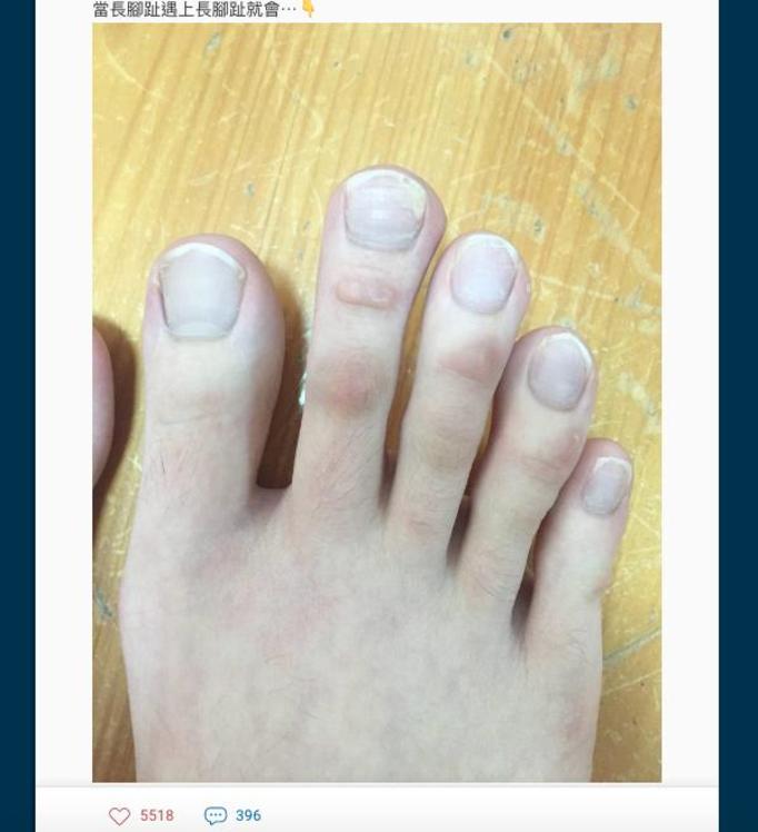 długie palce u stóp