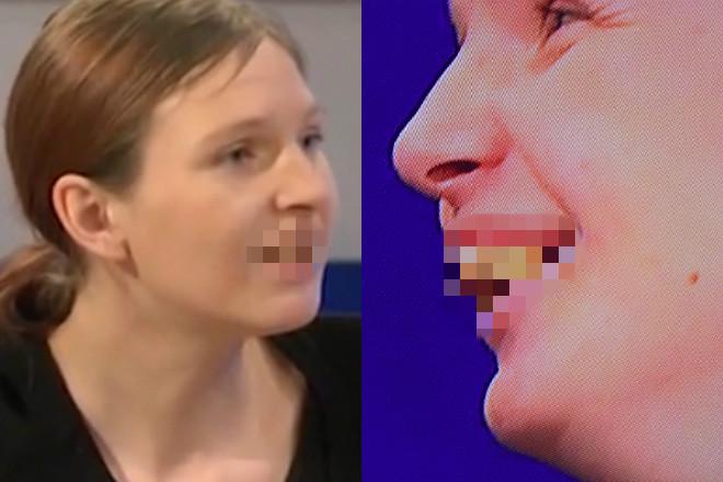 brzydkie zęby