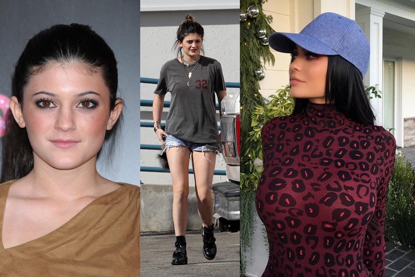 Kylie Jenner przed i po operacjach