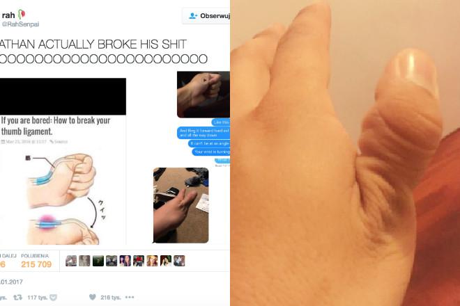 złamany kciuk