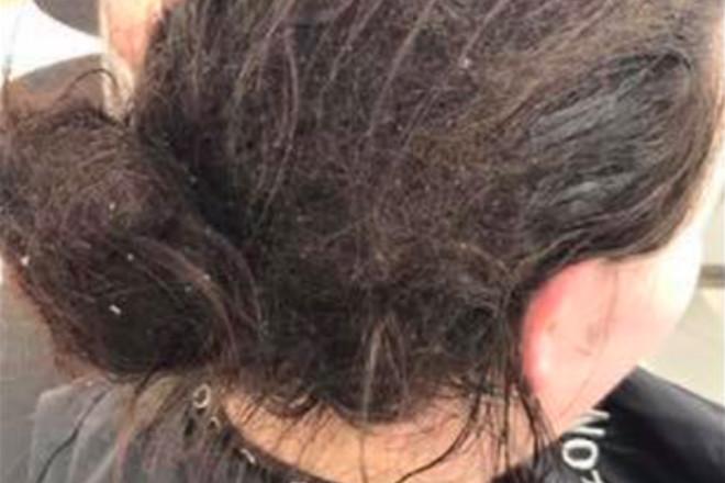 zaniedbane włosy