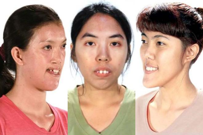 efekty operacji plastycznej