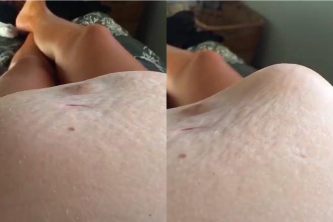 ciążowy brzuch