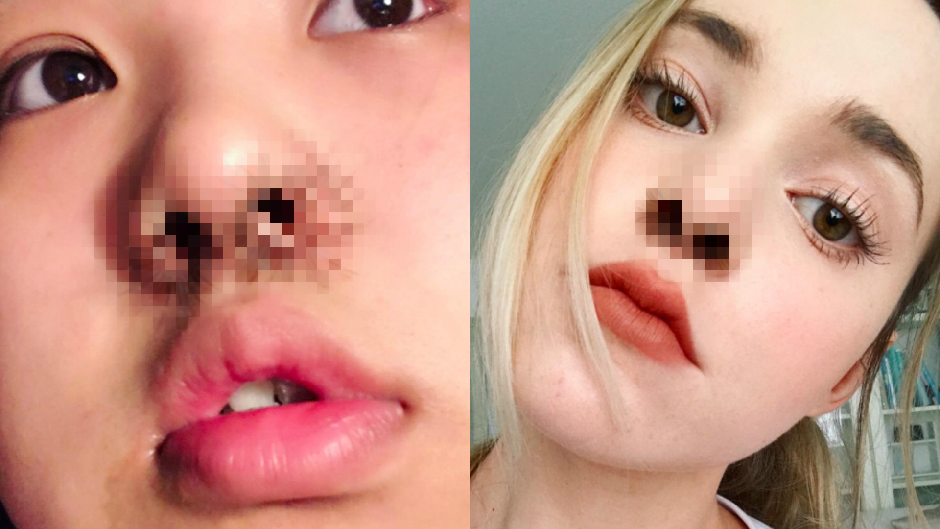 sztuczne rzęsy w nosie