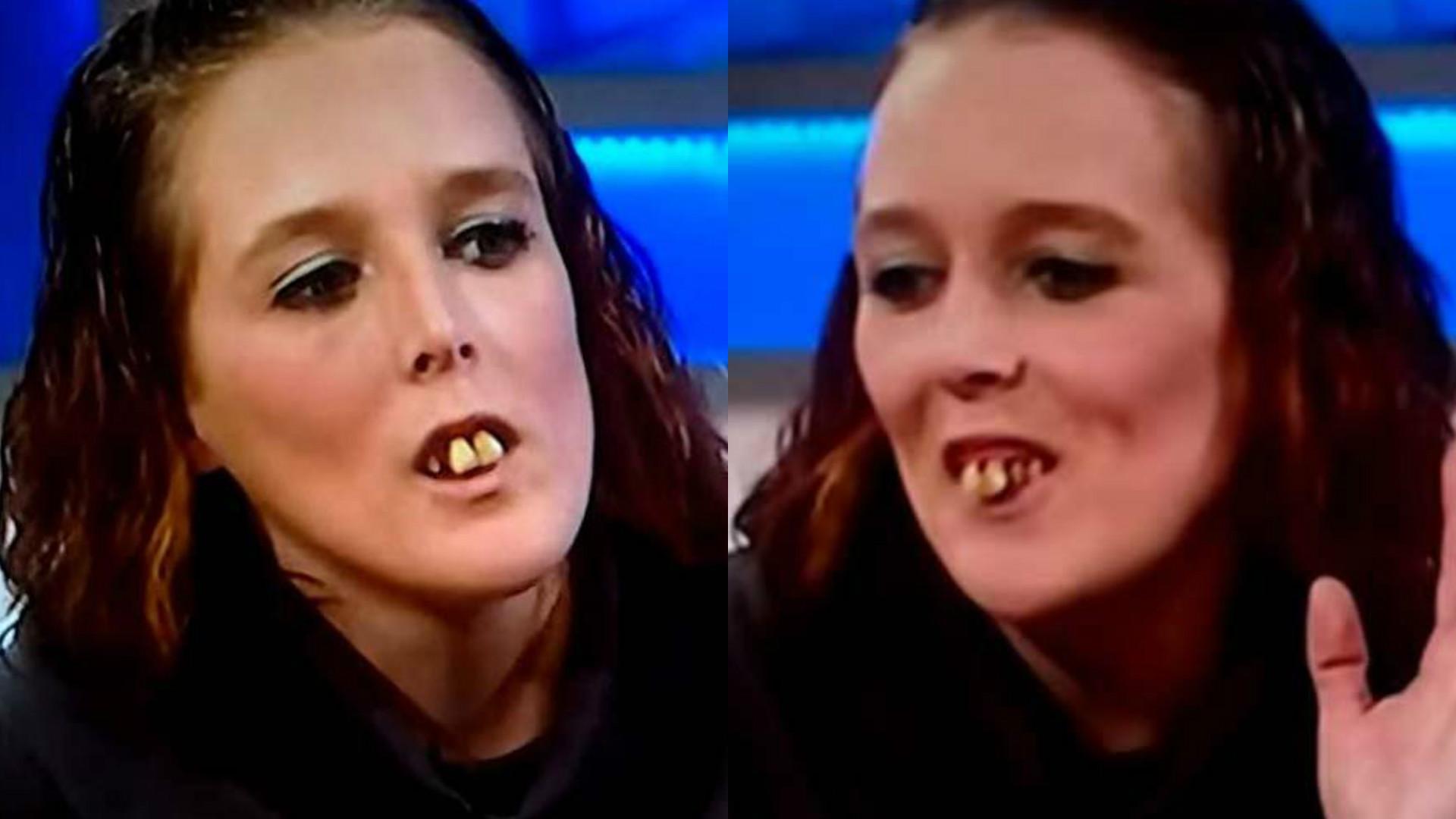 najbrzydsze zęby na świecie