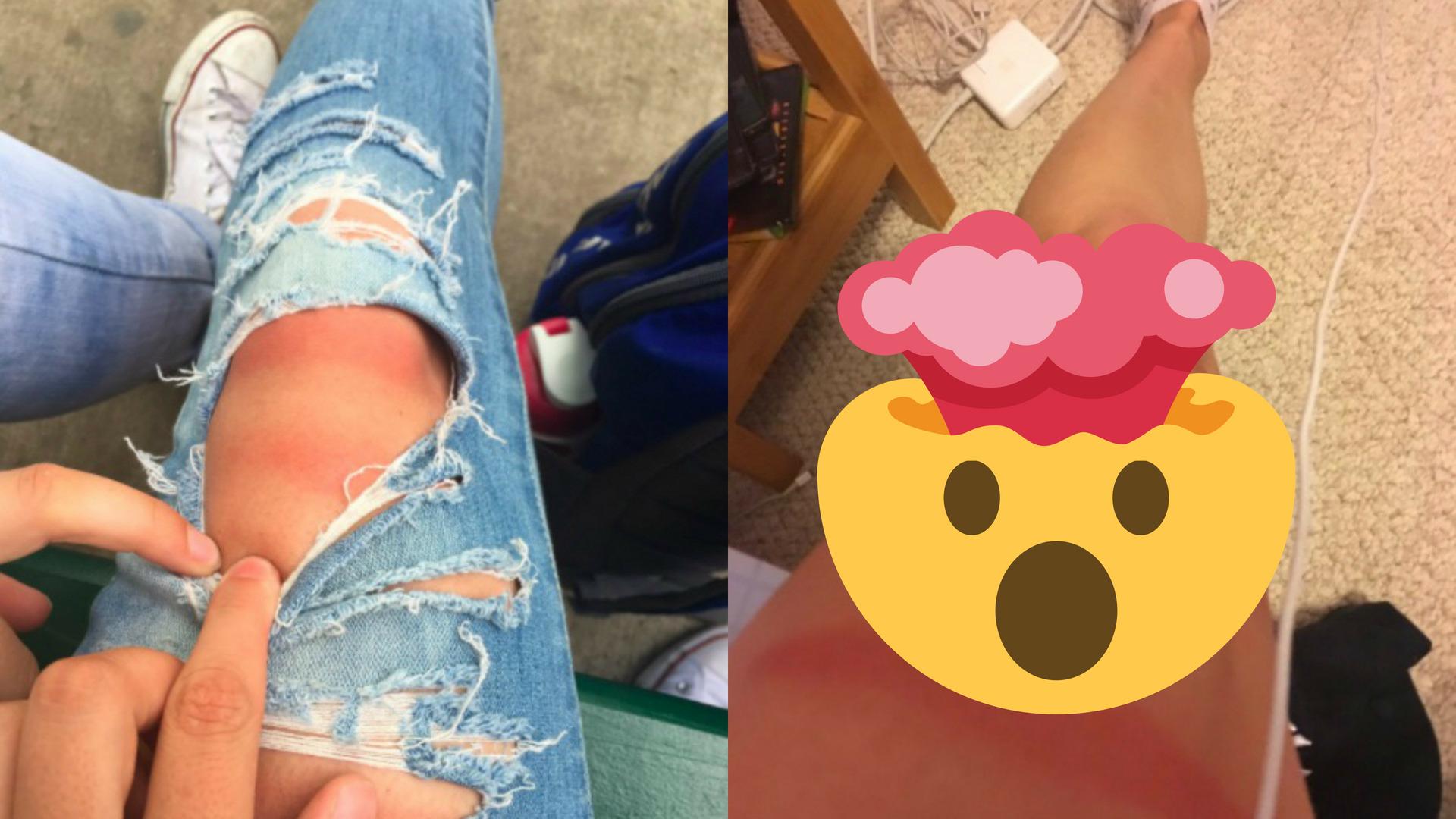 Noszenie dziurawych jeansów latem