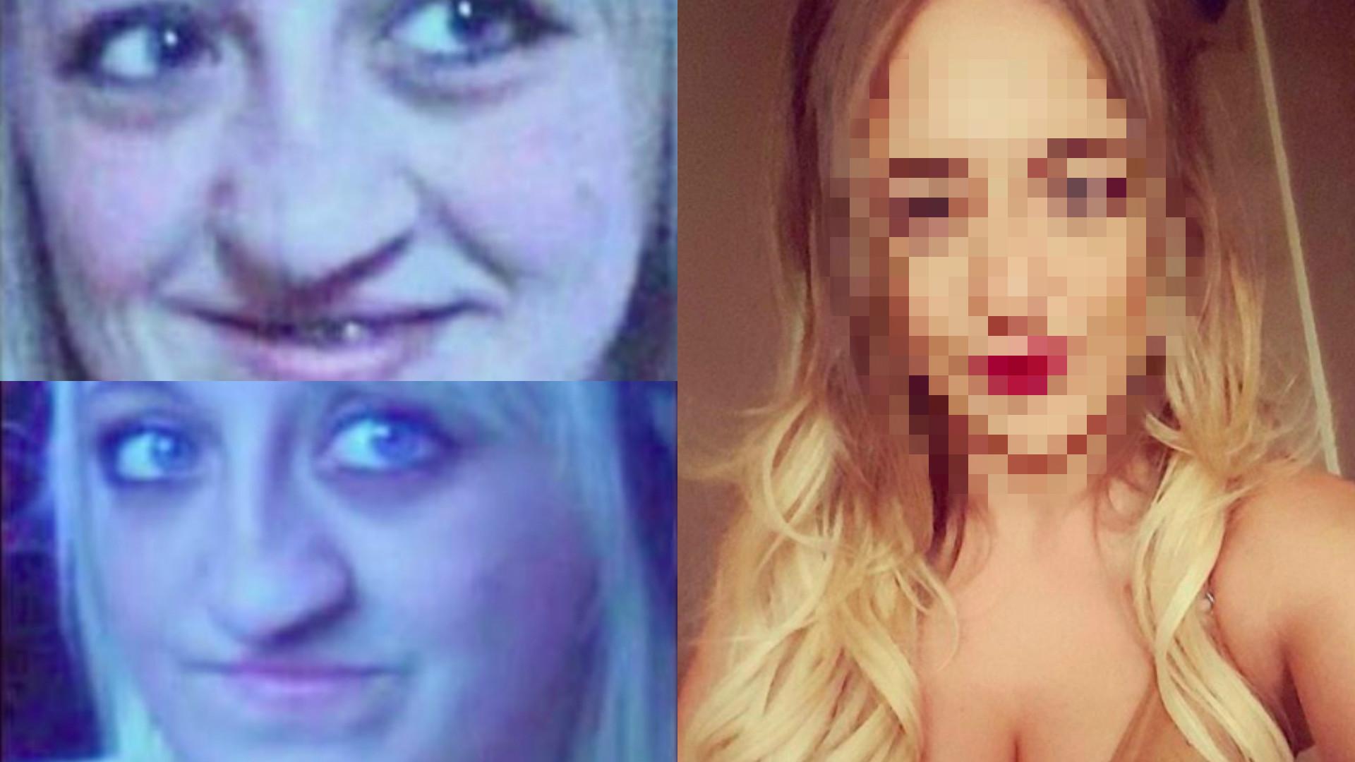 Laura Hawkes zoperowała rozszczepioną twarz